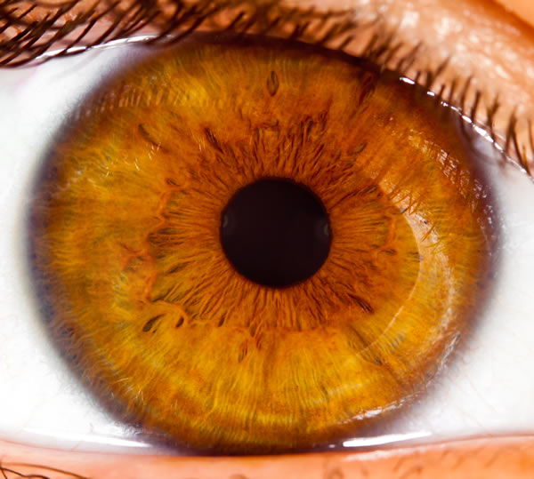 Iridology in Sydney