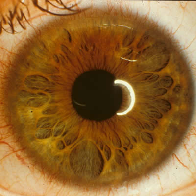 Sydney Iridology - Iris Photo 1